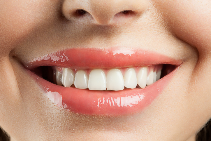 Why You Should Consult a Cosmetic Dentist Before Whitening Your Teeth